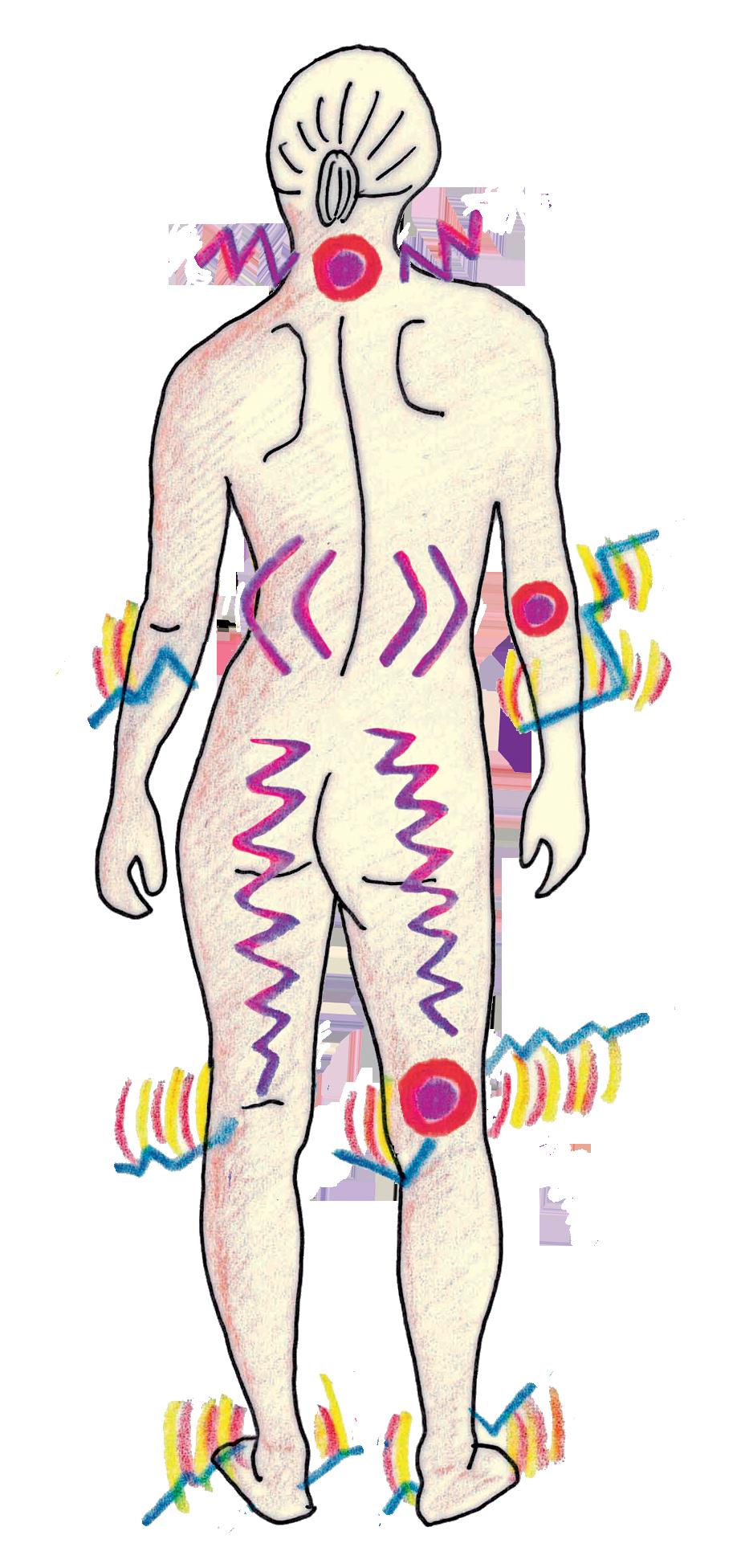 Gelenk- und Rückenschmerzen - Aus dem Nähkästchen der TCM